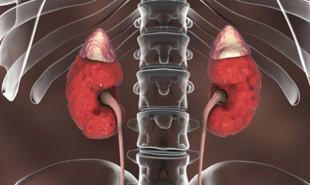 Νεφρική ανεπάρκεια: Αυτά είναι τα επικίνδυνα σημάδια!