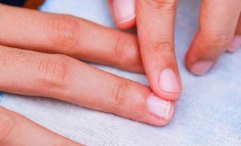 Παρωνυχίδα: Πώς την αφαιρούμε χωρίς πόνο και επιπλέον τραυματισμό