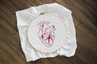 Επεμβάσεις περιστροφικής αθηρεκτομής (rotablation), στη THORAX HEART– ΙΑΣΩ Θεσσαλίας